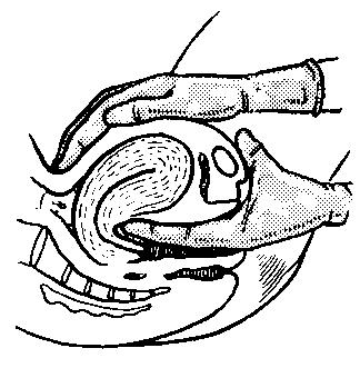 Pear-shaped uterus is felt during an exam.  Fingertips are at the junction of the cervix to the fundus.